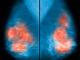 Avancem! Un investigador de la UAB identifica un nou gen implicat en el càncer de mama familiar